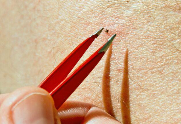 När du har fått en fästing så ska du ta bort den så snabbt som möjligt. Använd pincett och dra rakt ut.