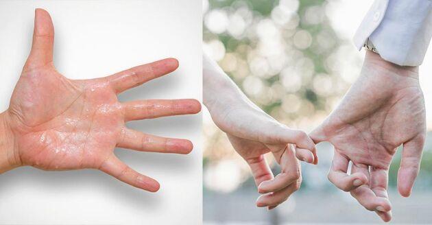 Bara tanken på att ta någon i handen kan leda till svettiga händer för personer som lider av överdriven svettning, hyperhidros.
