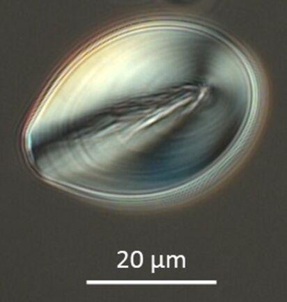Så här ser de rekordgamla mikroskopiska spåren av vildpotatisen ut.
