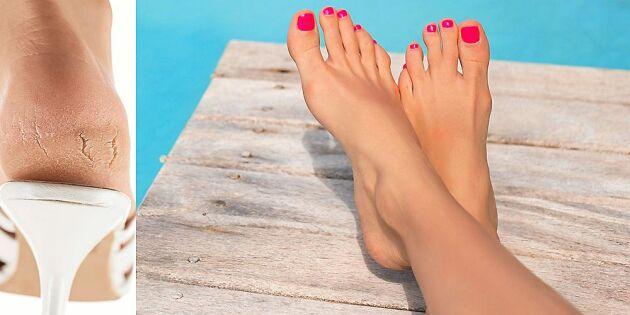 Så blir du kvitt otäcka hälsprickor – och får sommarfina fötter!