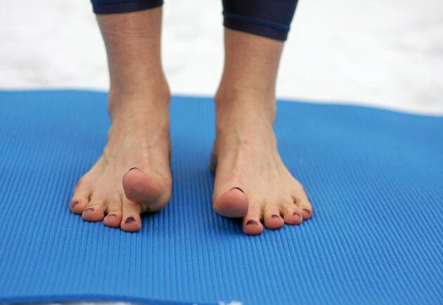 Är du drabbad av hallux valgus? Gå barfota om du kan och prova fysioterapeutens enkla fotgympa.