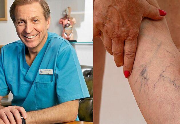 Kärlkirurgen Stefan Nydahl hjälper patienter med åderbråck med hjälp av moderna skonsamma metoder.