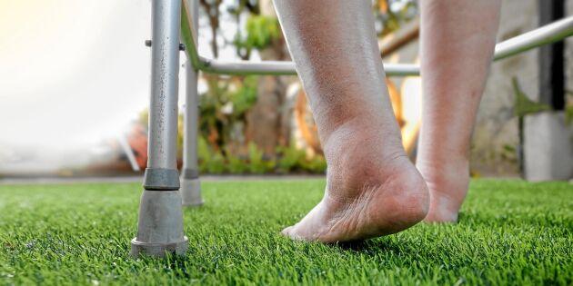 Svullna fötter och ben? Så vet du om du har ödem