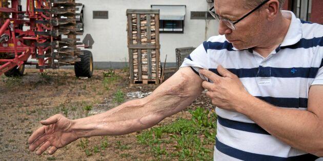 Marcus liv förändrades när hans arm drogs in i potatisplockaren